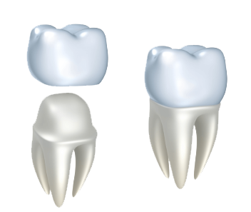 Dental Crowns | Patrick C. Smith, DDS | Advanced Dental Care of South Florida