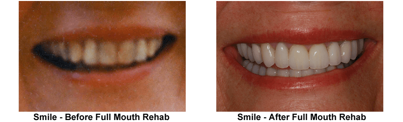 smile-before-after-full-mouth-rehab