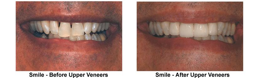 smile-before-after-upper-veneers