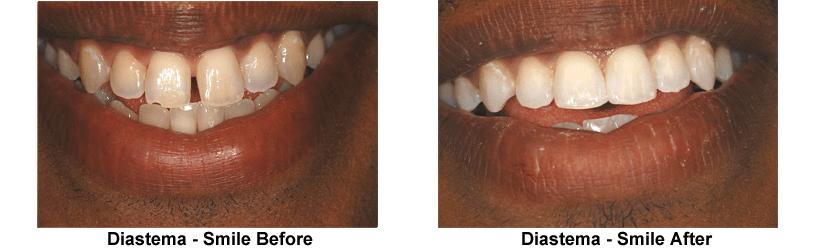 Before Diastema, Closed With Bonding